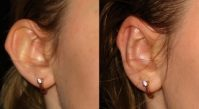 Операция отопластика поможет изменить форму ушей