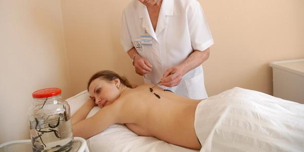 Гирудотерапия в гинекологии сколько процедур необходимо 9