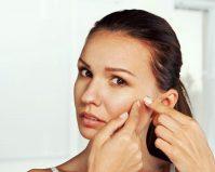 Универсальные средства от угрей на лице: кто виноват генетика или образ жизни